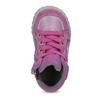 Dívčí kotníčková kožená obuv bubblegummers, růžová, 123-5601 - 17